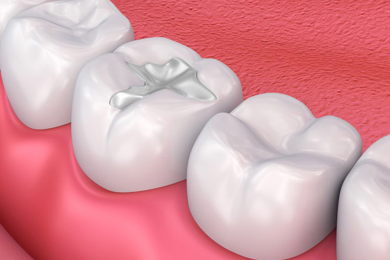 composite fillings near you