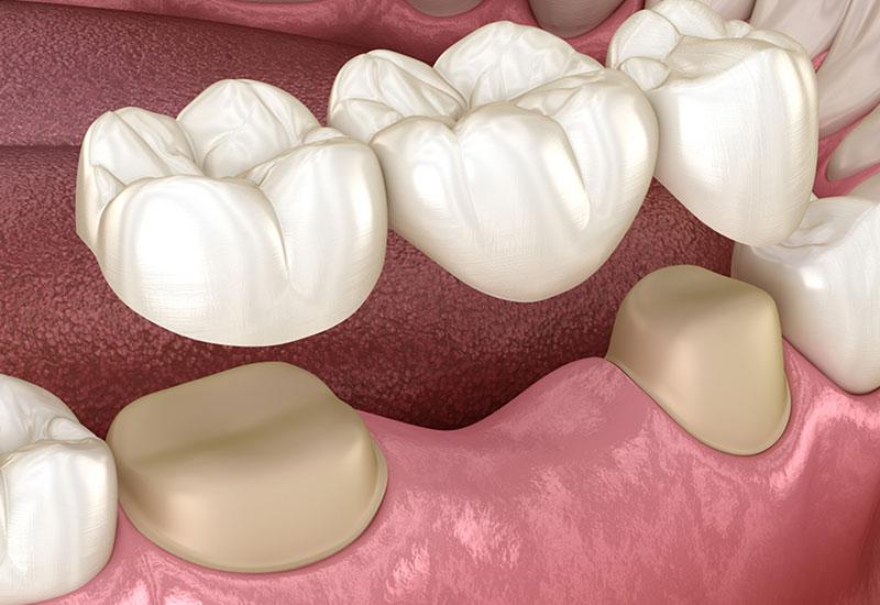 dental bridges in banff