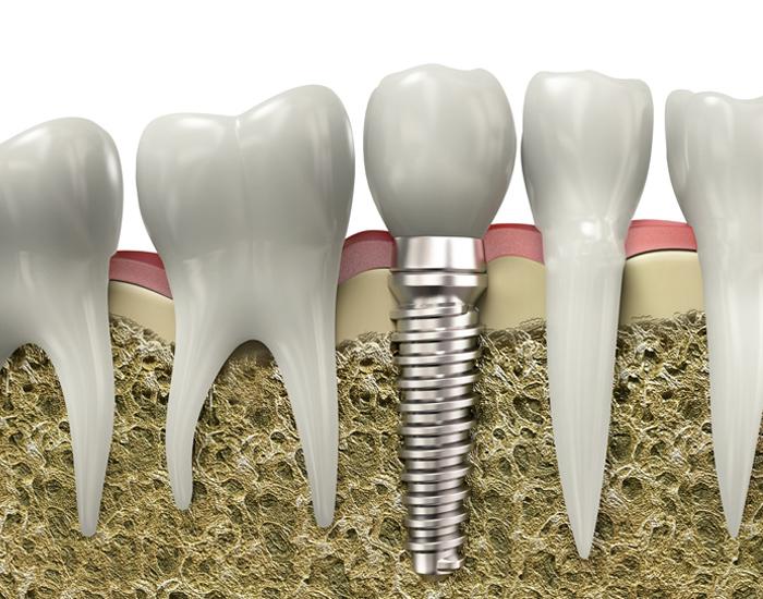 dental implants in banff