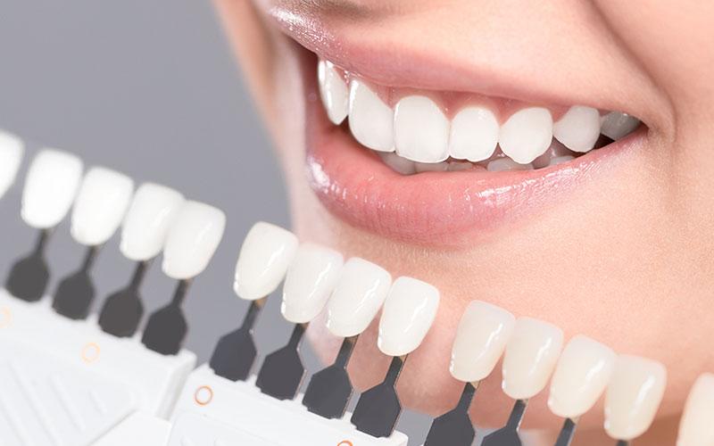 in office teeth whitening in banff