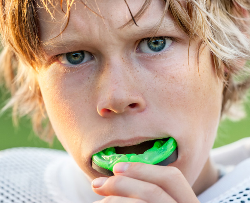 mouth guard in banff